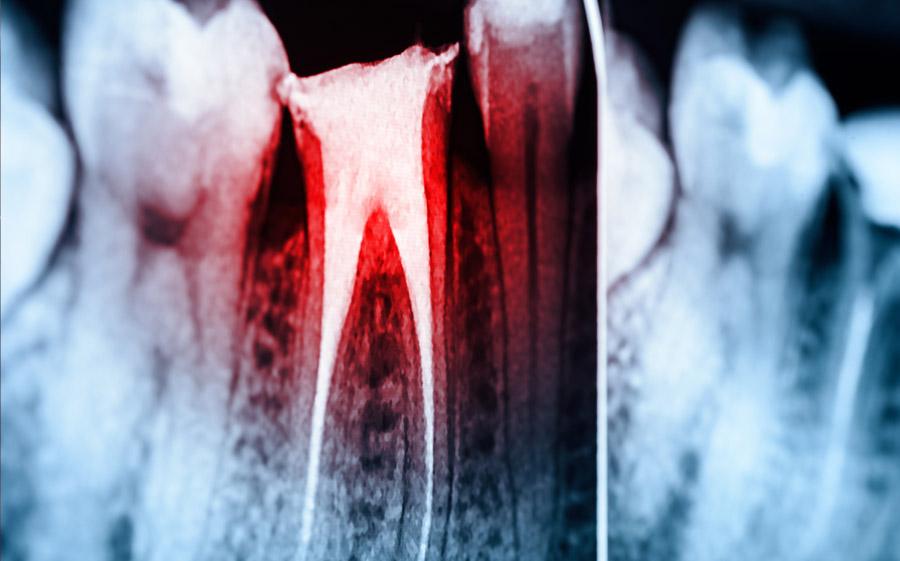 endodontie wurzelbehandlung muenchen innenstadt stachus